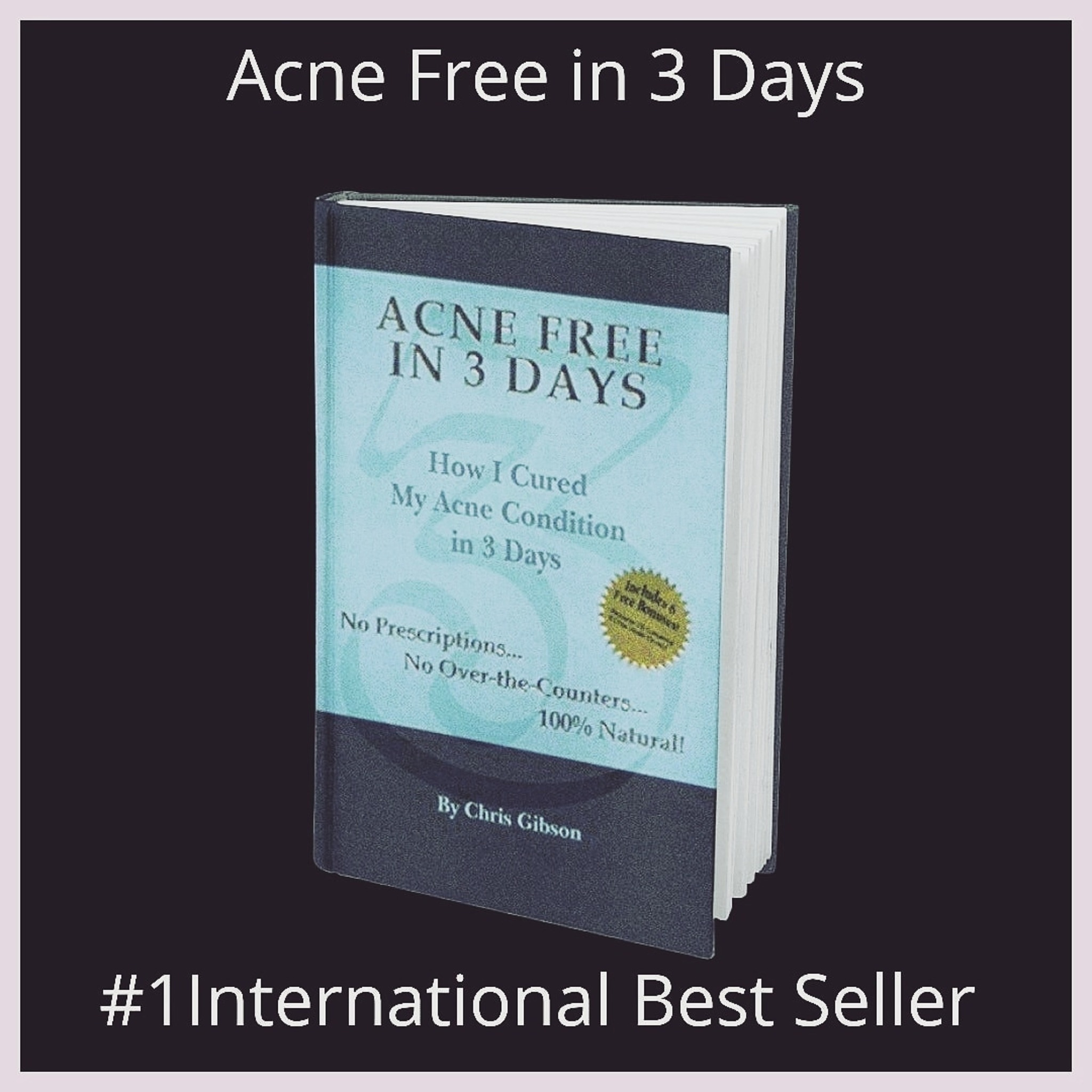 FREE! (Plus shipping/handling) Book Hardcover Acne Free in 3 Days - Chris  Gibson Live